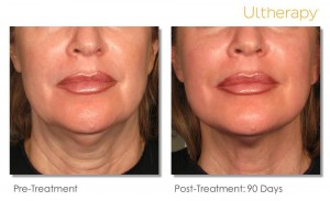 Ultherapy before and after in Tulsa