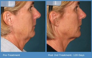 Lift, Tone & Tighten Sagging Skin With Ultherapy® in Tulsa at SCI