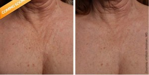 Ultherapy Decolletage Tulsa OK Skin Care Institute