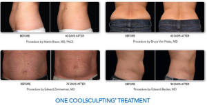 coolsculpt-skin-care-institute-tulsa-oklahoma