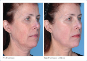ultherapy-before-after-skin-care-institute-tulsa-ok