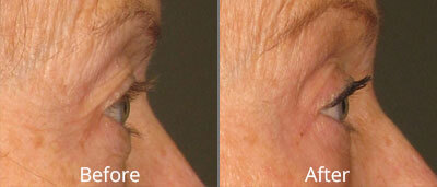 Ultherapy Before & After Photos at Skin Care Institute in Tulsa, Oklahoma