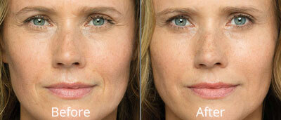 Belotero Balance Before & After Photos in Tulsa, Oklahoma at Skin Care Institute