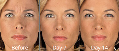 BOTOX Before & After Photos in Tulsa, Oklahoma at Skin Care Institute
