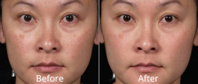 Clear + Brilliant™ Before & After Photos in Tulsa, Oklahoma at Skin Care Institute