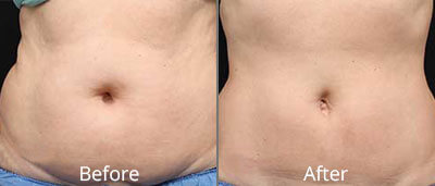 CoolSculpting Before & After Photos in Tulsa, Oklahoma at Skin Care Institute