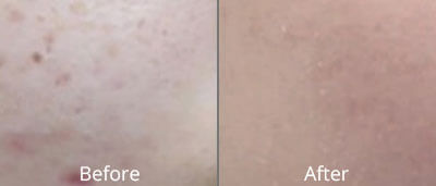 Micro-Needling Before & After Photos in Tulsa, Oklahoma at Skin Care Institute