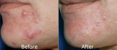 Isolaz Before & After Photos in Tulsa, Oklahoma at Skin Care Institute