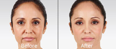 Juvéderm Before & After Photos in Tulsa, Oklahoma at Skin Care Institute