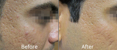 Fractional Skin Resurfacing Before & After Photos in Tulsa, Oklahoma at Skin Care Institute