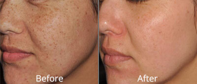 IPL Photofacial Before & After Photos in Tulsa, Oklahoma at Skin Care Institute