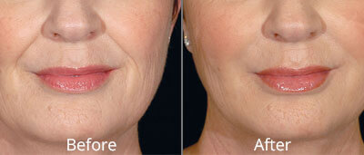 Restylane Before & After Photos in Tulsa, Oklahoma at Skin Care Institute