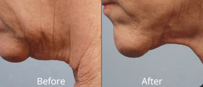 Skin Tightening Before & After Photos in Tulsa, Oklahoma at Skin Care Institute