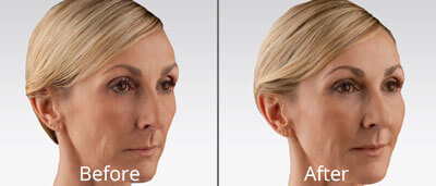 Voluma XC Before & After Photos in Tulsa, Oklahoma at Skin Care Institute