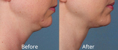 Kybella Before & After Photos in Tulsa, Oklahoma at Skin Care Institute