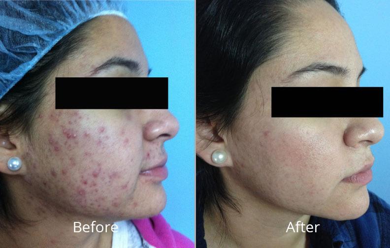 Hydrafacial In Tulsa Ok Skin Care Institute