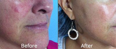 Hydrafacials In Tulsa Ok Skin Care Institute