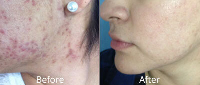 Hydrafacial Before & After Photos in Tulsa, Oklahoma at Skin Care Institute