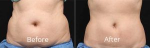 before-&-after-photos-of-coolsculpting-patient