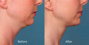 Curious about Kybella? Getting started is easy.