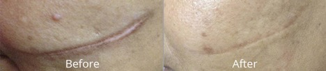 Microneedling Before & Afters
