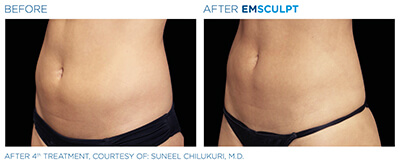 Emsculpt Before & After Photos in After 4th Treatment, Courtesy of: Suneel Chilukuri, M.D.