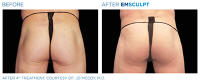 Emsculpt Before & After Photos in After 4th Treatment, Courtesy of: J.D McCoy, M.D.