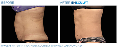 Emsculpt Before & After Photos of 8 weeks after Treatment, Courtesy of: Paula Lozanova, M.D.