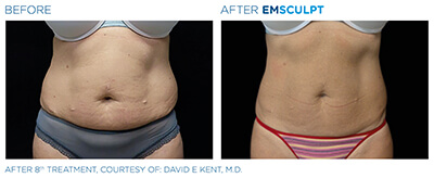 Emsculpt Before & After Photos in After 8th Treatment, Courtesy of: David E Kent, M.D.