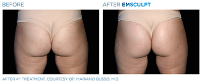 Emsculpt Before & After Photos in After 4th Treatment, Courtesy of: Mariano Busso, M.D.