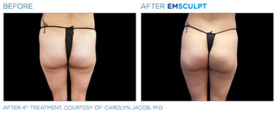 Emsculpt Before & After Photos in After 4th Treatment, Courtesy of: Carolyn Jacob, M.D.