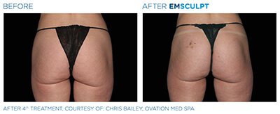 Emsculpt Before & After Photos in After 4th Treatment, Courtesy of: Chris Bailey, Ovation MedSpa