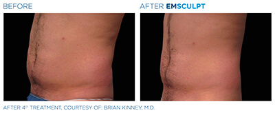 Emsculpt Before & After Photos in After 4th Treatment, Courtesy of: Brian Kinney, M.D.