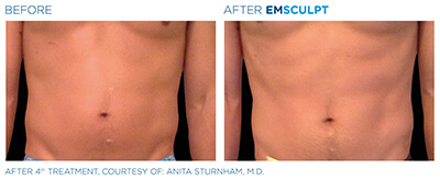 Emsculpt Before & After Photos in After 4th Treatment, Courtesy of: Anita Sturnham, M.D.