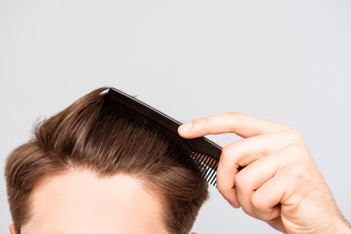 Maybe it's time to consider platelet-rich plasma (PRP) hair restoration.