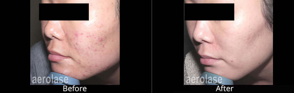 Aerolase Before & After Photos in Tulsa, Oklahoma at Skin Care Institute
