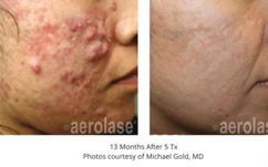 NeoClear can fix your skin!